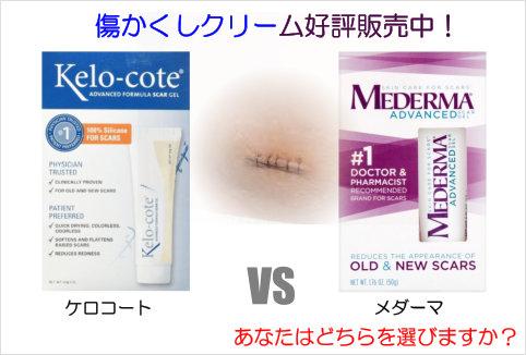 歯科医が使用する歯専用漂白剤オパールエッセンスの通販